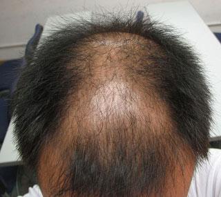 鉴别诊断脱发的方法有什么