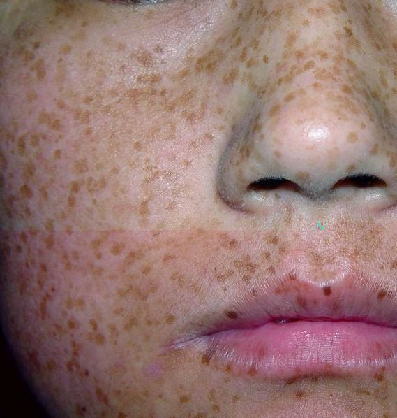 黄褐斑的危害有哪些?