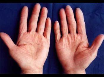 皮肤手足癣症状表现有什么?