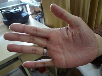 关于手足癣的病因及预防