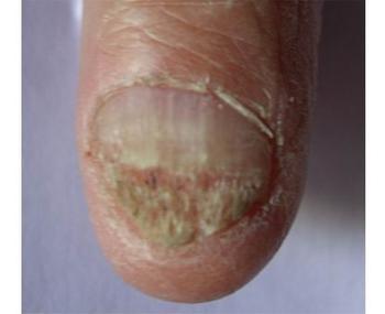 灰指甲的形成原因
