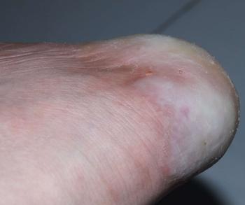 介绍什么是角化型手足癣