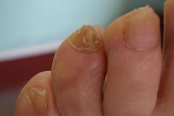 灰指甲的初期症状有什么