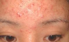青春痘的临床表现及症状有哪些呢?