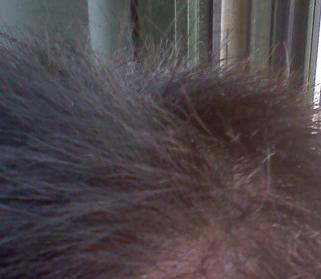 一般的脱发是怎样的症状表现
