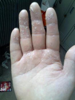 手足癣可以预防吗?