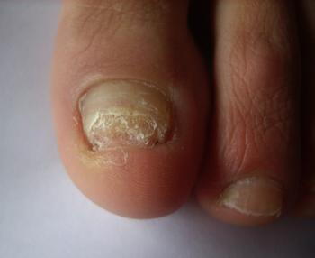灰指甲都有什么危害