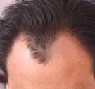 治疗脱发有何注意事项呢