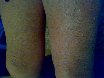 鱼鳞病对女性患者的伤害