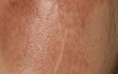 如何来预防黄褐斑呢?