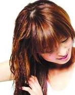 脱发会有怎样的类型表现呢