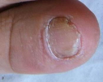 灰指甲的症状和怎样治疗