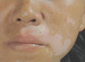 女性面部白癜风怎样治疗?