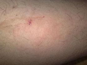 皮肤瘙痒的病因有哪些