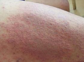 夏季得了皮炎会有哪些症状