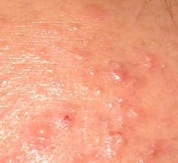 痤疮患者早期有何症状