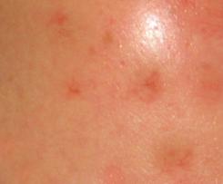 诊断过敏性痤疮的方法
