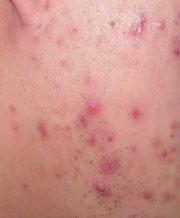 夏季如何预防皮肤过敏