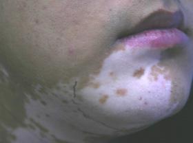 白癜风部位医治能恢复正常肤色吗