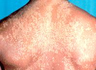 红斑狼疮患者有何并发症发生