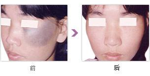 如何治疗黑色胎记【Birthmark】比较好