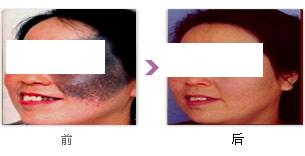 黑胎记【Birthmark】的治疗方法