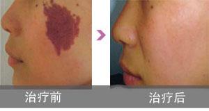 红胎记【Birthmark】与血管瘤有什么区别