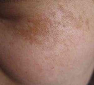 如何预防黄褐斑?