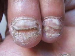 哪些人群易患灰指甲?